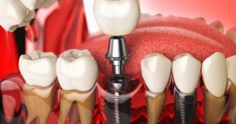 Zębowe implanty